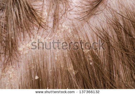stock-photo-dandruff-in-the-hair-of-a-person-137366132